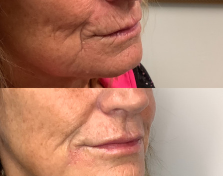 Lip filer with skin strengthening around the mouth