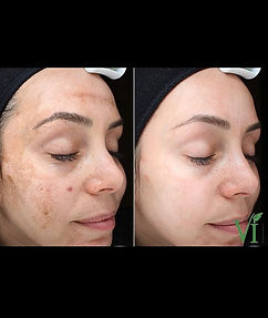 Melasma can be caused sun exposure, horm