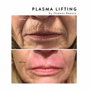 plasma.png