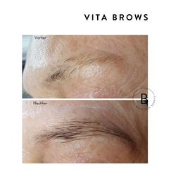 vita-brows-vorher-nachher-2