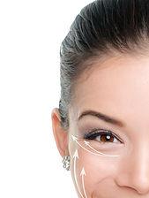 Face lift anti-aging treatment. Lifting
