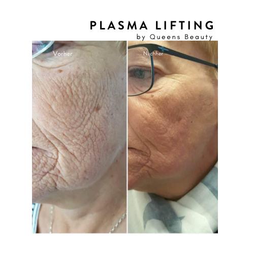 plasma1.png