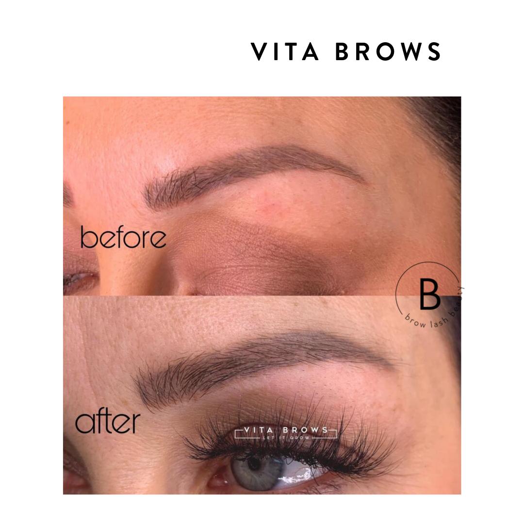 Vita Brows Vorher Nachher 1