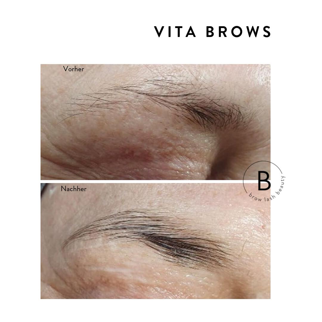 vita-brows-vorher-nachher-3
