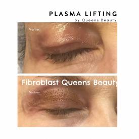 plasma2.png