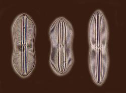 Three Diatoms Moller
