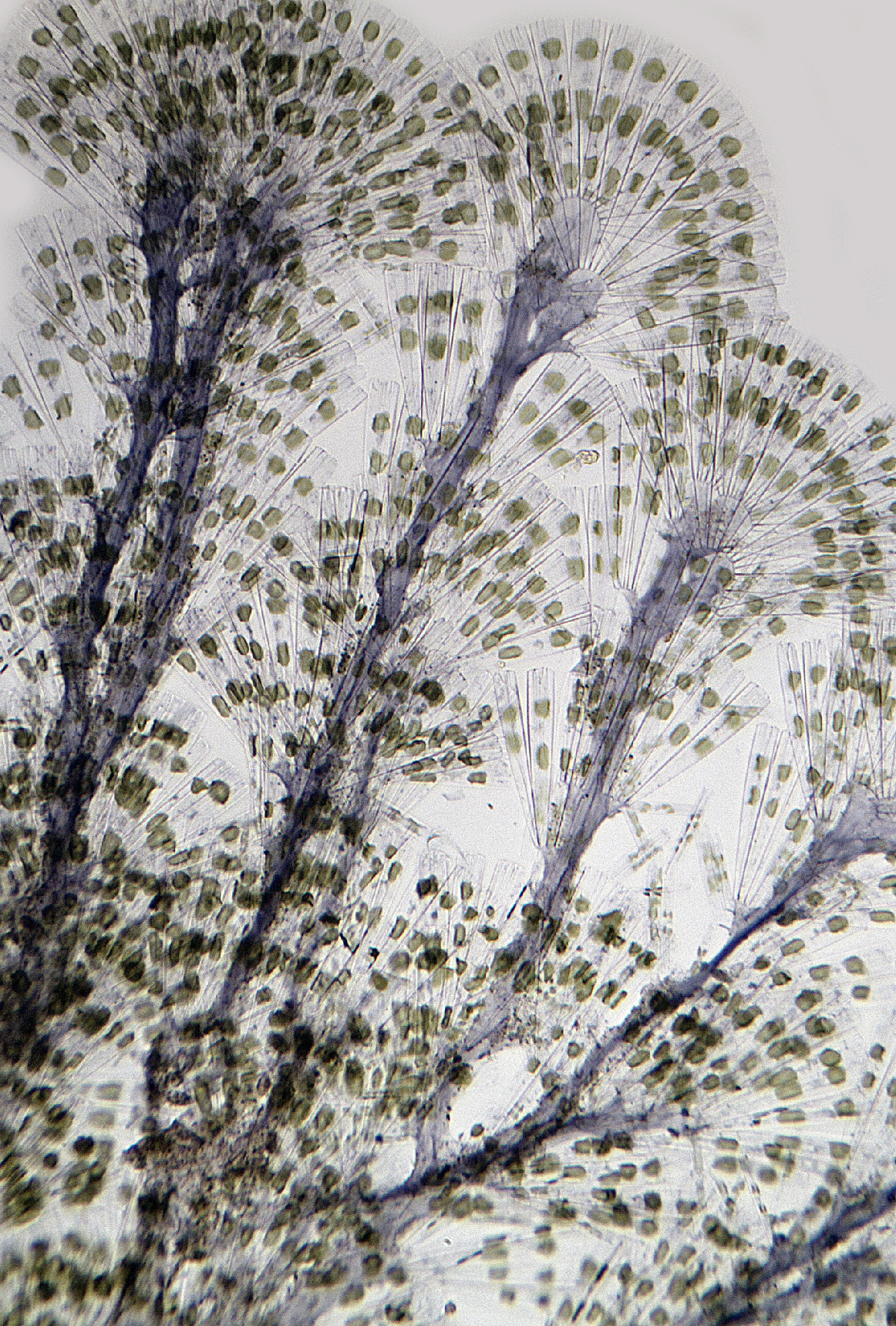 Licmophora Diatoms 1 A.Topping