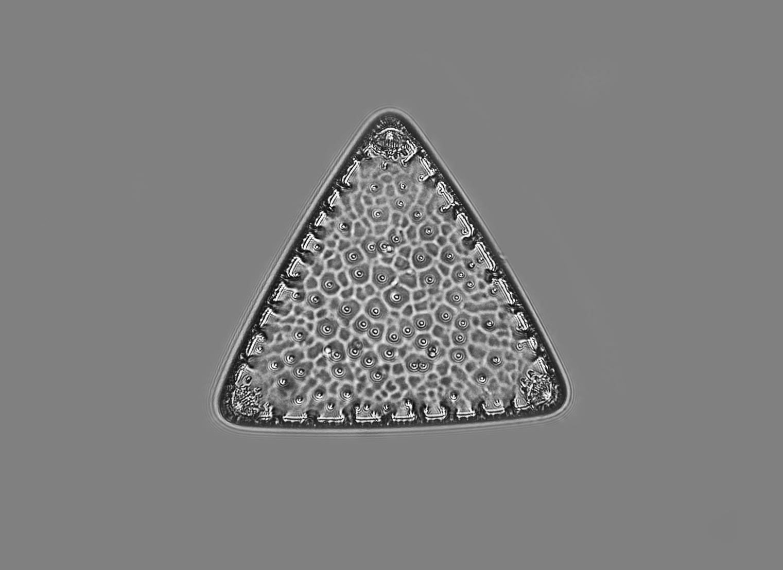 Diatom Moller Zetopan 1