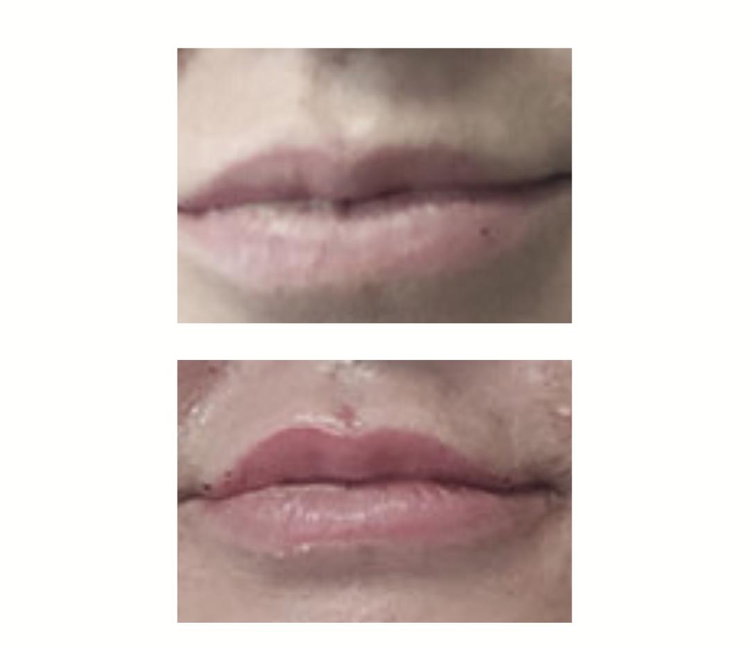 שפתיים- לפני ואחרי