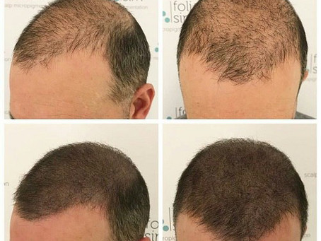 Scalp Micro Pigmentation (SMP) and its Benefits