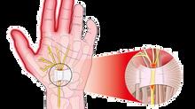 Les douleurs du canal carpien, que faire ?