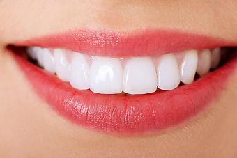 lamine kaplama perfect dental