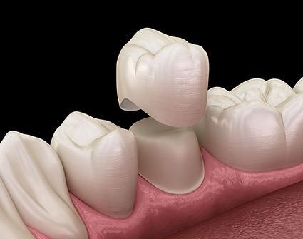 diş kronları