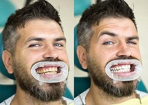 diş beyazlatma öncesi sonrası