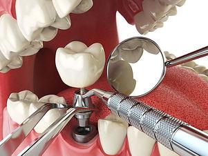 implant operasyonu sonrası