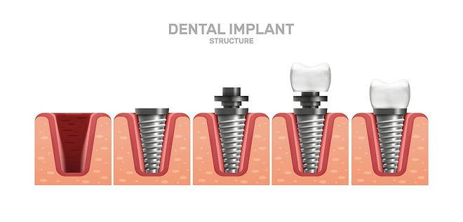 implant tedavisi aşamaları