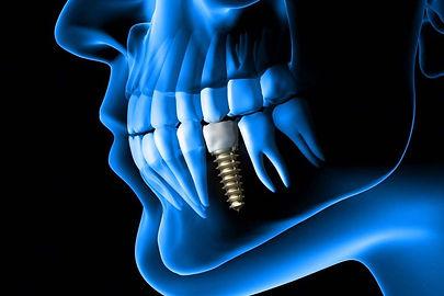 implant 3d