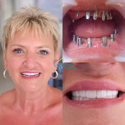 donna thompson before and after metal.jp