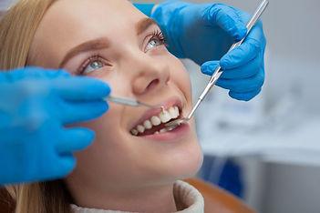 gülüş diş