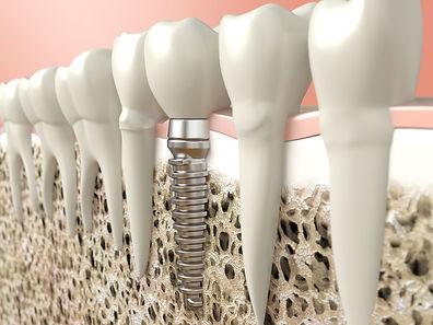 implant tedavisi prosedürü