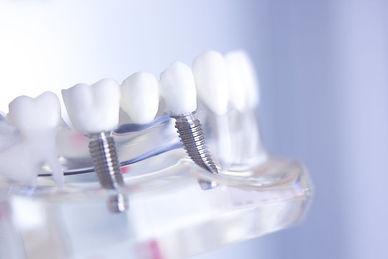 diş implantı maket