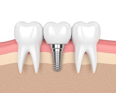 tek implant diş