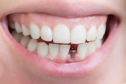 tek implant