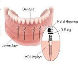 mini implantlar