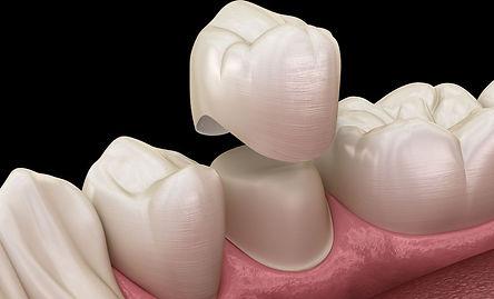 diş kronaları