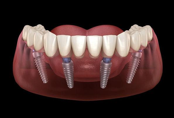 all on 4 implant sistemi