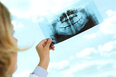 x-ray röntgen filmi