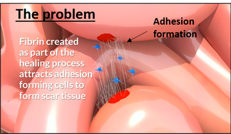 EIO Biomedical's solution
