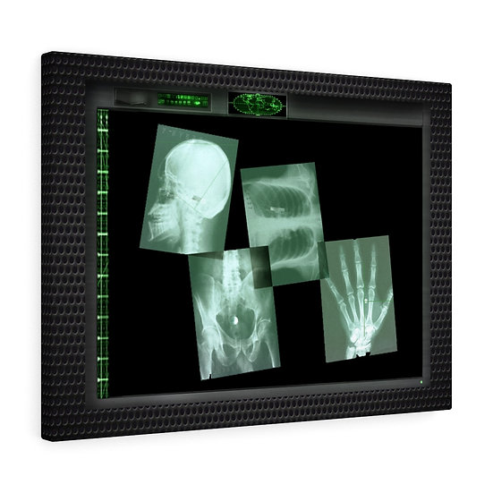 """Alien Implant X-Ray Monitor"" Canvas Gallery Wraps"
