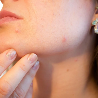 There's A Legit Reason Your Skin Is Worse Than Ever During Lockdown