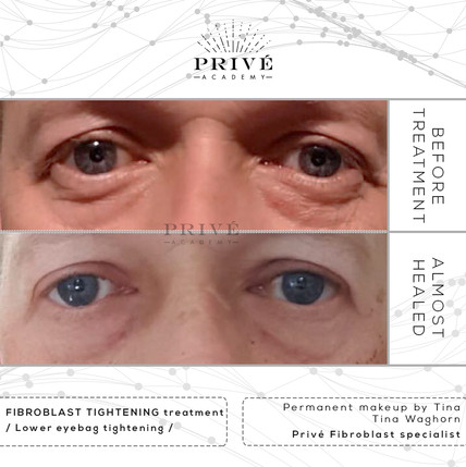 Fibroblast Skin Tightening Under Eye Bags and Eyelid Lift Before & After