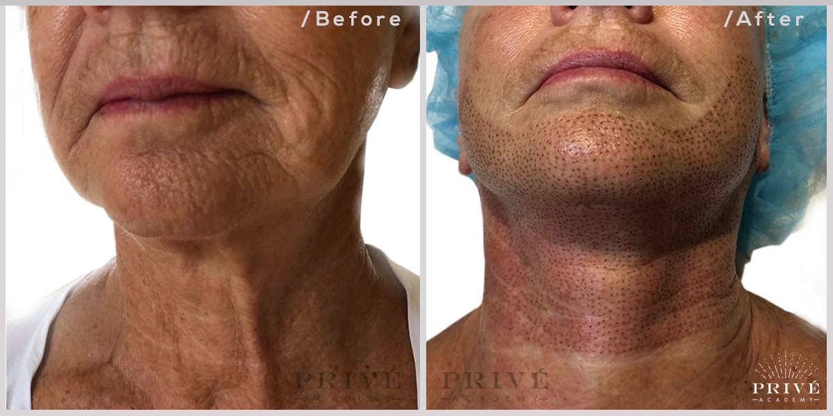 Fibroblast Skin Tightening Neck Tightening Before & After
