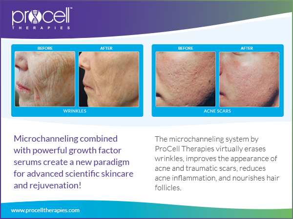 Micro-Channeling for Anti-Aging and Scarring Before & After