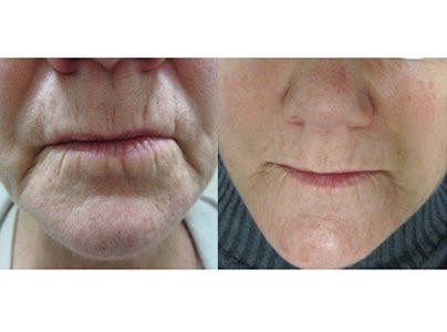 Micro-Channeling for around Mouth Wrinkles Before & After