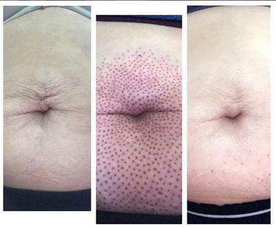 Fibroblast Skin Tightening Belly Button Before & After