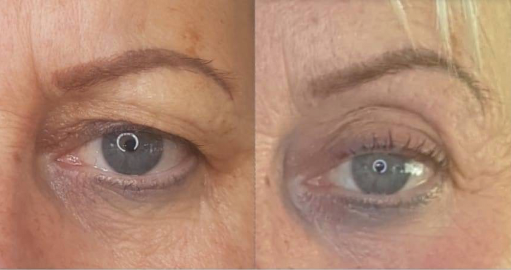Fibroblast Skin Tightening Eye Lift Before & After