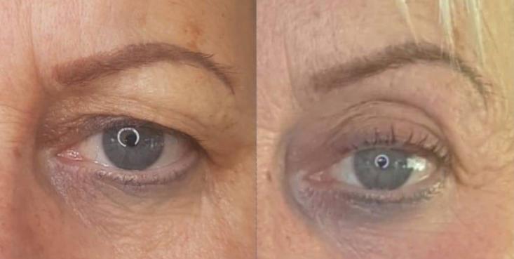 Fibroblast Skin Tightening Eye Lift Before & After