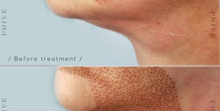 Fibroblast Skin Tightening Neck Before & After