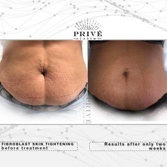 Fibroblast Skin Tightening Stomach Before & After