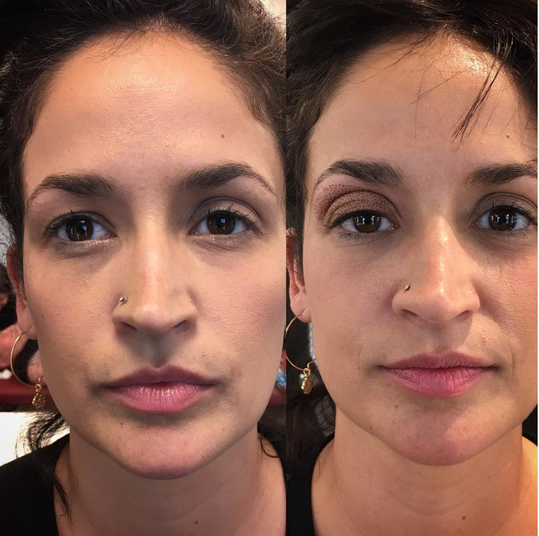 Fibroblast Skin Tightening Eyelid Lift Before & After