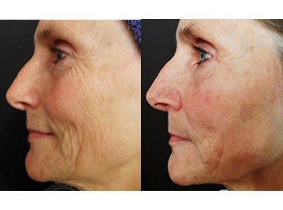 Micro-Channeling for Sagging and Wrinkles Before & After