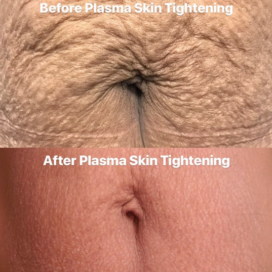 Fibroblast Skin Tightening Mommy Tummy Tightening Before & After