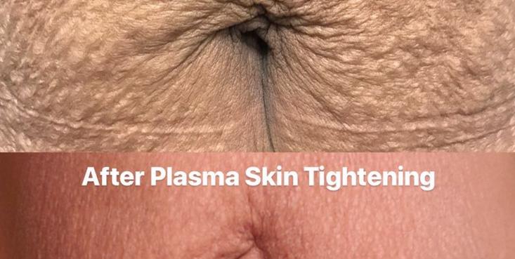 Fibroblast Skin Tightening Mommy Tummy Tightening Before & After