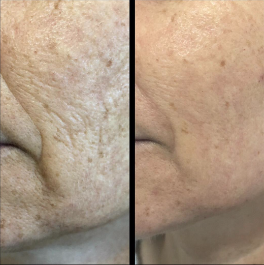 Fibroblast Skin Tightening Smile Lines and Jowels Before & After