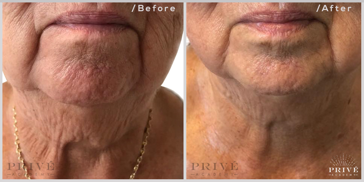 Fibroblast Skin Tightening Sagging Neck Before & After