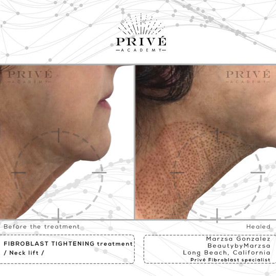 Fibroblast Skin Tightening Neck Lift and Tightening Before & After